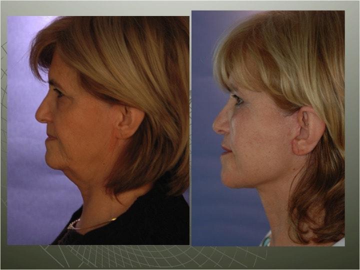 Le lifting du cou est souvent associé à celui du visage