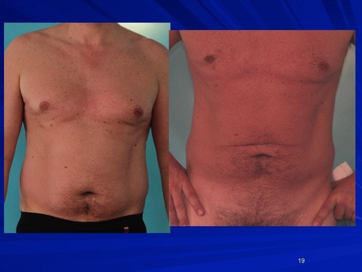 Lipoaspiration des seins et de l'abdomen