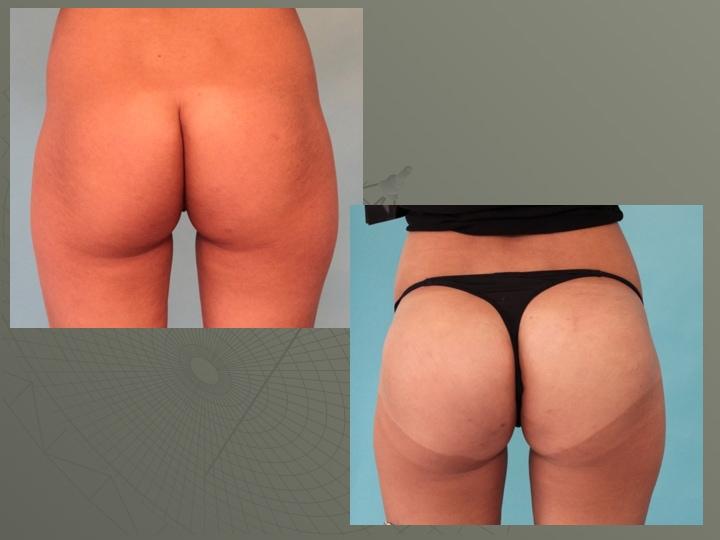 Plastie de fesses par implants ( 300ml)